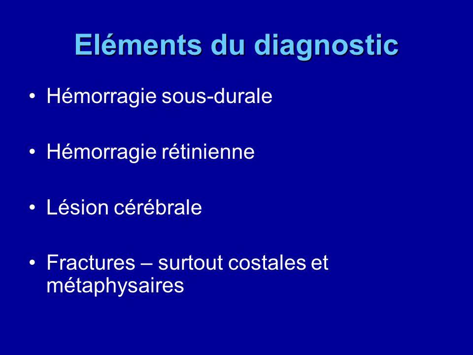 Eléments du diagnostic Hémorragie sous-durale Hémorragie rétinienne Lésion cérébrale Fractures – surtout costales et métaphysaires
