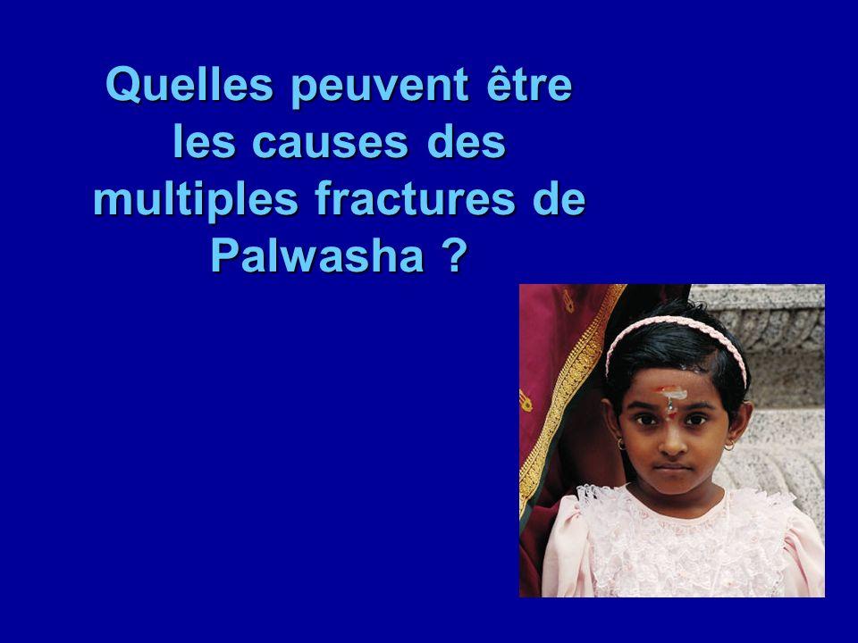 Quelles peuvent être les causes des multiples fractures de Palwasha ?
