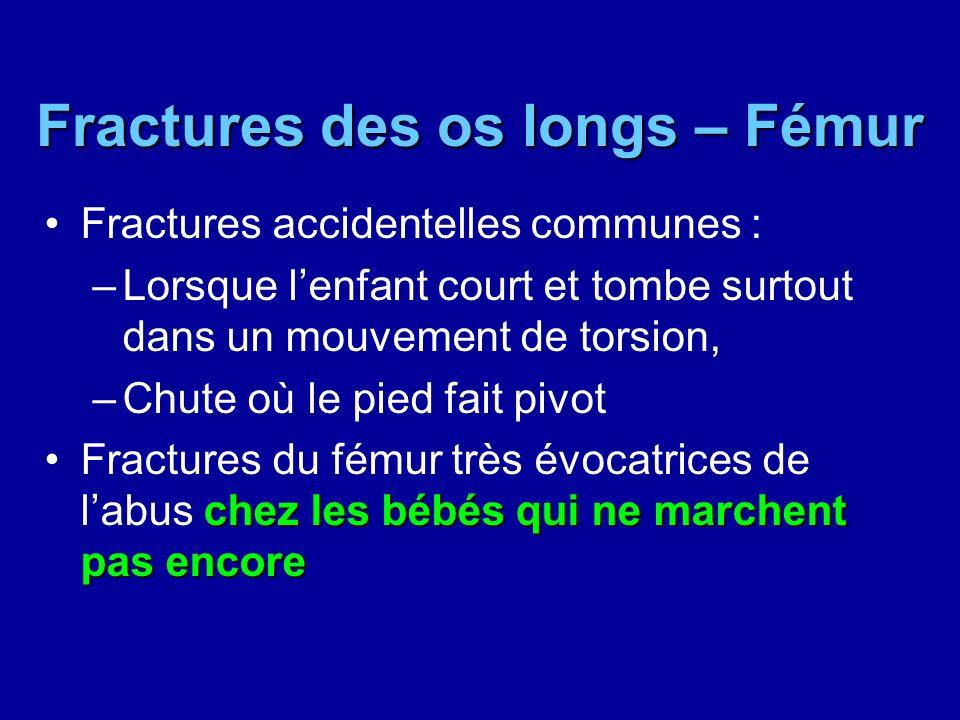 Fractures des os longs – Fémur Fractures accidentelles communes : –Lorsque lenfant court et tombe surtout dans un mouvement de torsion, –Chute où le p