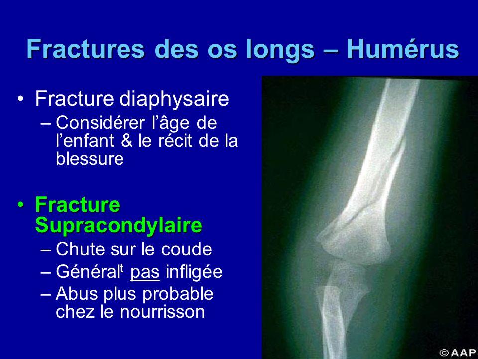 Fractures des os longs – Humérus Fractures des os longs – Humérus Fracture diaphysaire –Considérer lâge de lenfant & le récit de la blessure Fracture