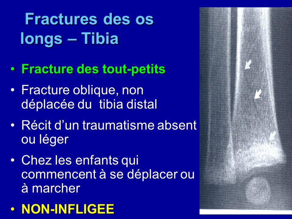 Fractures des os longs – Tibia Fractures des os longs – Tibia Fracture des tout-petitsFracture des tout-petits Fracture oblique, non déplacée du tibia