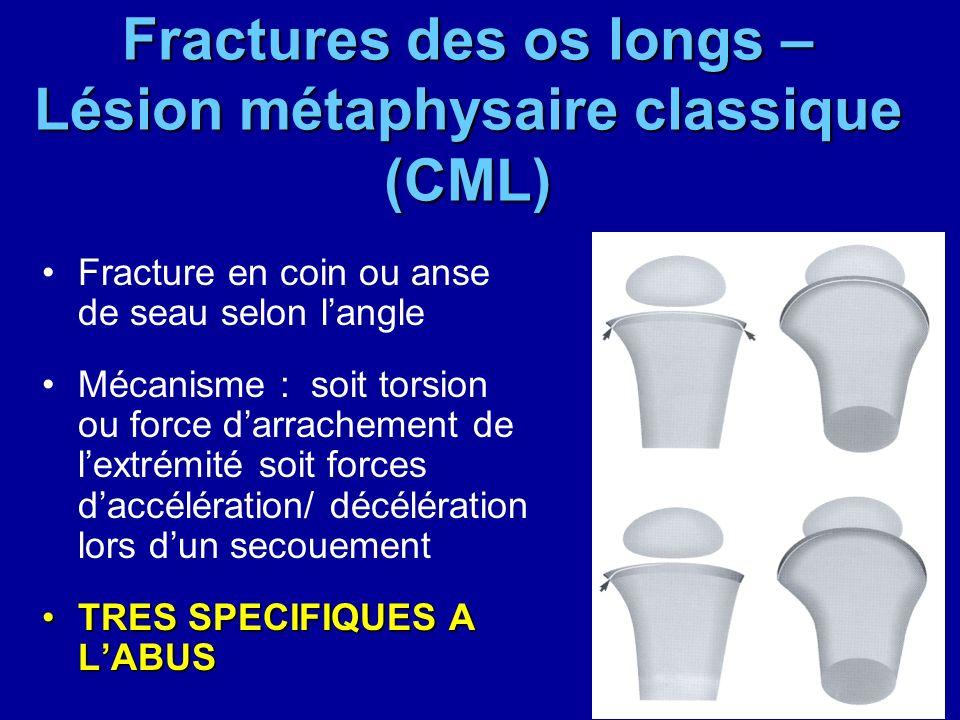 Fractures des os longs – Lésion métaphysaire classique (CML) Fracture en coin ou anse de seau selon langle Mécanisme : soit torsion ou force darrachem