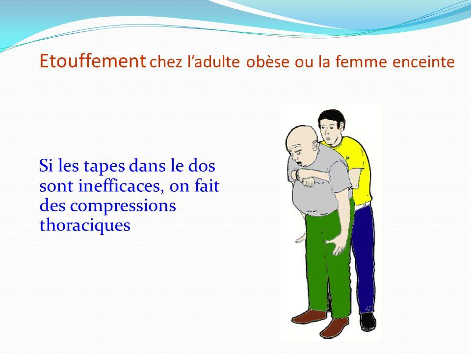 Etouffement chez ladulte ou lenfant Tapes dans le dos … … si inefficaces, compressions abdominales (vidéo)vidéo Chez lenfant, on essaye de le basculer