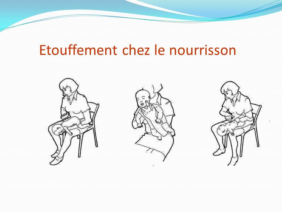 Si les tapes dans le dos sont inefficaces, on fait des compressions thoraciques Etouffement chez ladulte obèse ou la femme enceinte