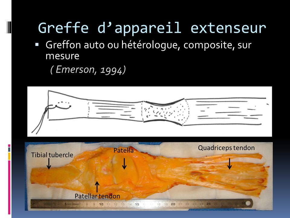 Greffe dappareil extenseur Greffon auto ou hétérologue, composite, sur mesure ( Emerson, 1994) ( Emerson, 1994)