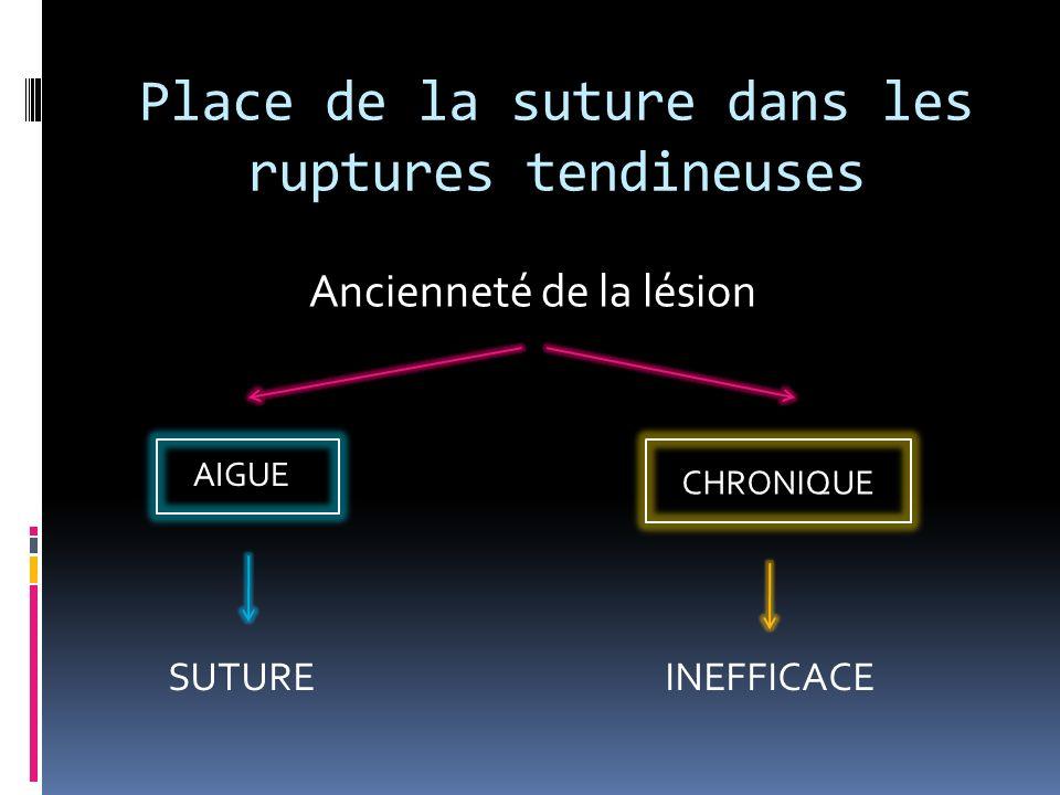 Place de la suture dans les ruptures tendineuses Ancienneté de la lésion AIGUE SUTURE CHRONIQUE INEFFICACE