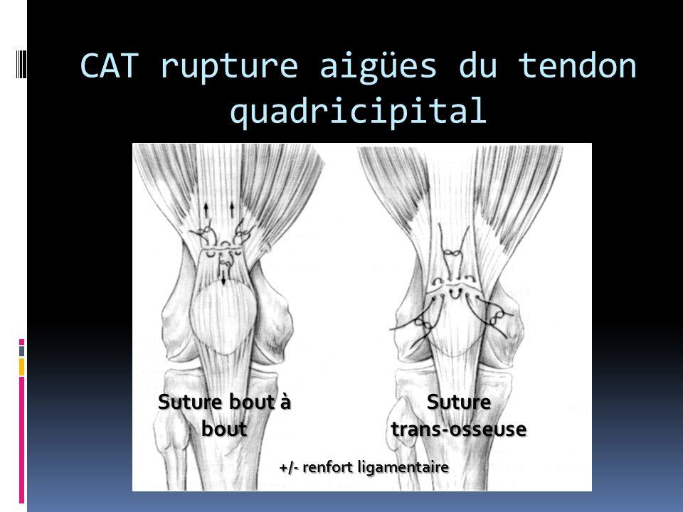 CAT rupture aigües du tendon quadricipital Suture bout à bout Suture trans-osseuse +/- renfort ligamentaire