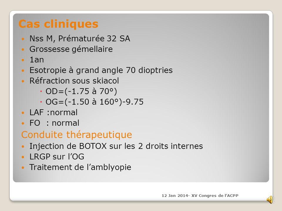 Nss M, Prématurée 32 SA Grossesse gémellaire 1an Esotropie à grand angle 70 dioptries Réfraction sous skiacol OD=(-1.75 à 70°) OG=(-1.50 à 160°)-9.75 LAF :normal FO : normal Conduite thérapeutique Injection de BOTOX sur les 2 droits internes LRGP sur lOG Traitement de lamblyopie 12 Jan 2014- XV Congres de lACPP Cas cliniques