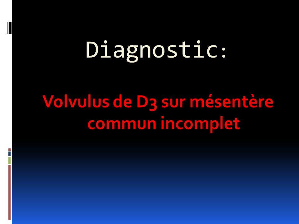 Diagnostic : Volvulus de D3 sur mésentère commun incomplet