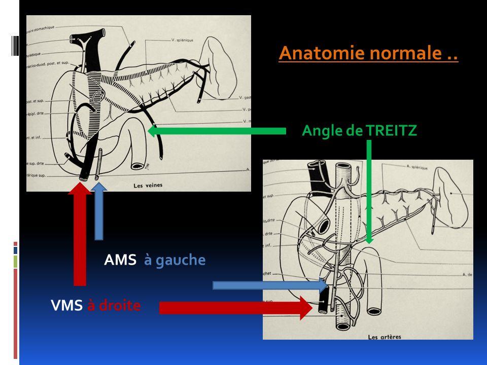 Anatomie normale.. AMS à gauche VMS à droite Angle de TREITZ