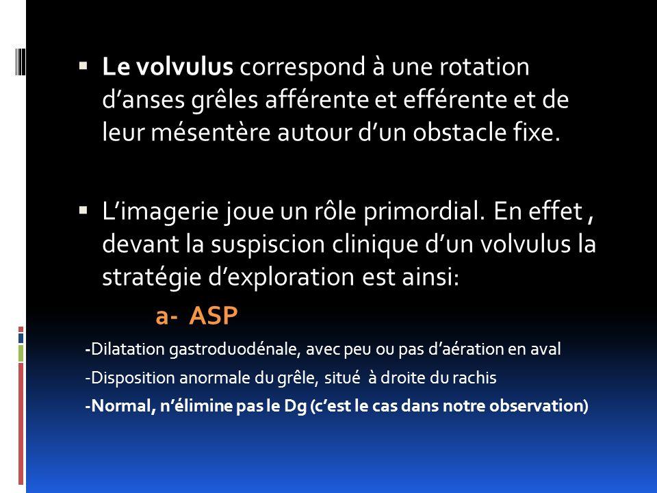Le volvulus correspond à une rotation danses grêles afférente et efférente et de leur mésentère autour dun obstacle fixe. Limagerie joue un rôle primo
