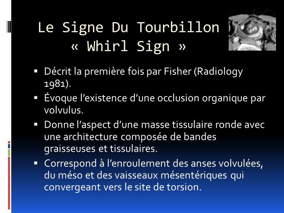 Le Signe Du Tourbillon « Whirl Sign » Décrit la première fois par Fisher (Radiology 1981).