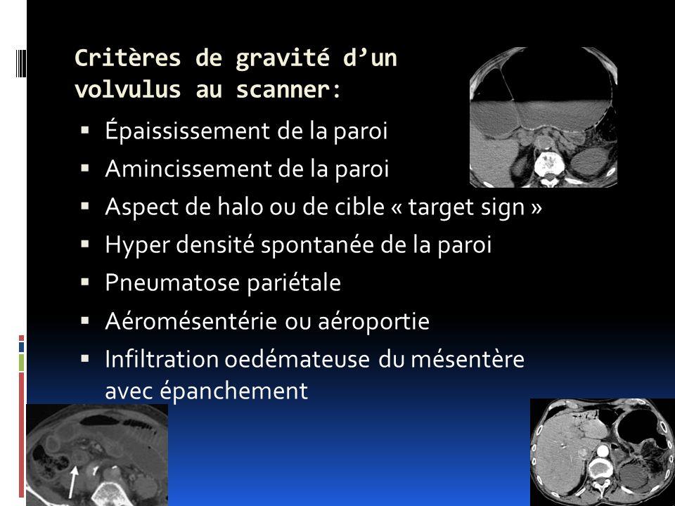 Critères de gravité dun volvulus au scanner: Épaississement de la paroi Amincissement de la paroi Aspect de halo ou de cible « target sign » Hyper den