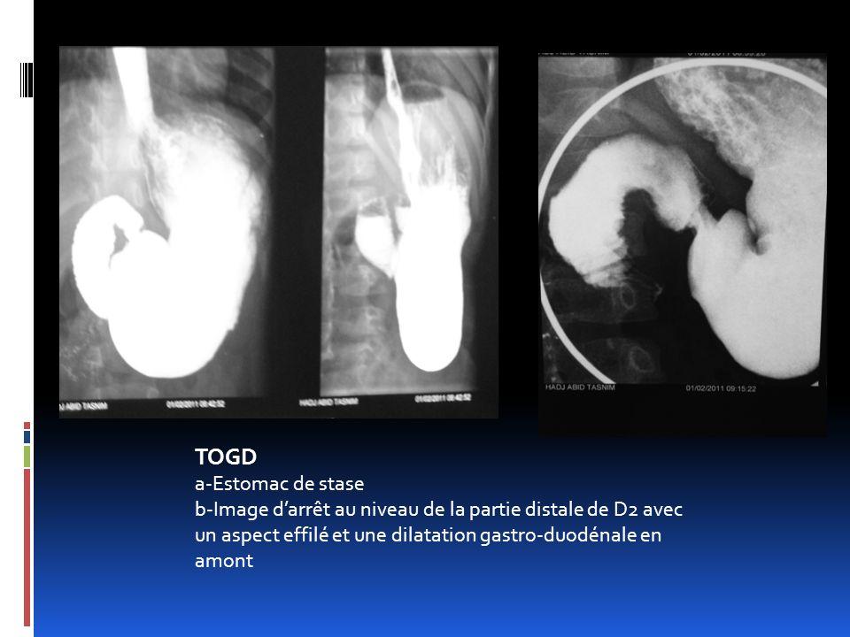 TOGD a-Estomac de stase b-Image darrêt au niveau de la partie distale de D2 avec un aspect effilé et une dilatation gastro-duodénale en amont