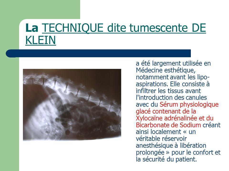 La TECHNIQUE dite tumescente DE KLEIN a été largement utilisée en Médecine esthétique, notamment avant les lipo- aspirations. Elle consiste à infiltre