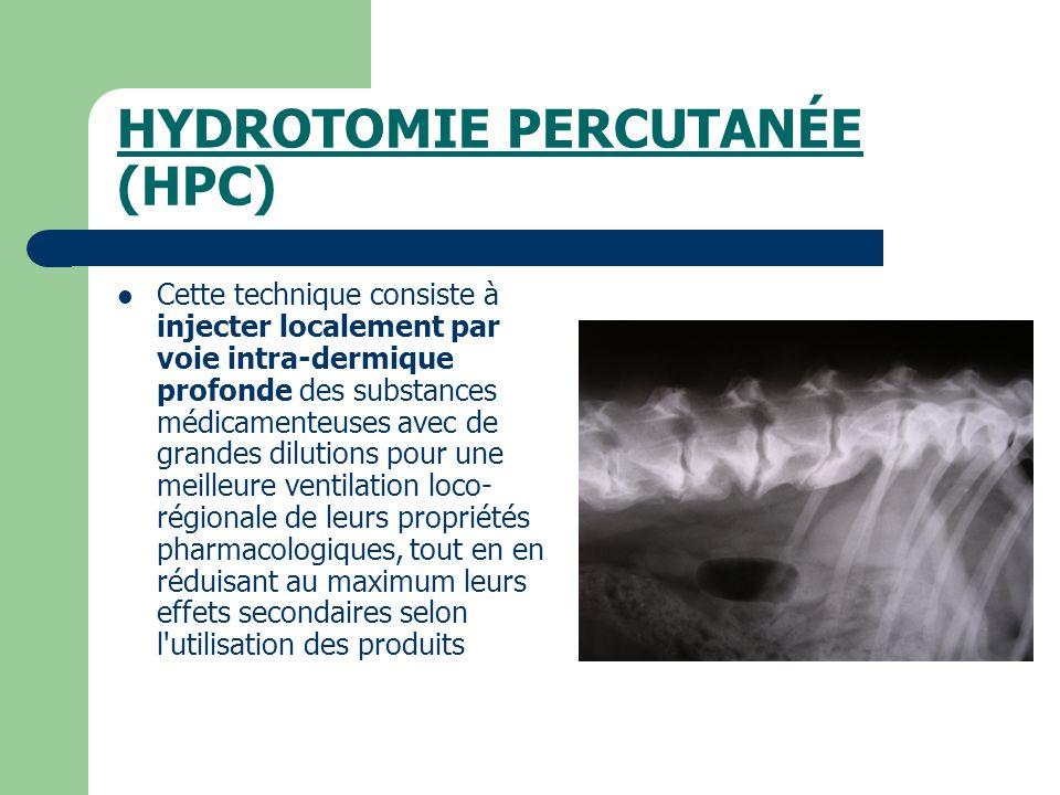 HYDROTOMIE PERCUTANÉE (HPC) Cette technique consiste à injecter localement par voie intra-dermique profonde des substances médicamenteuses avec de gra