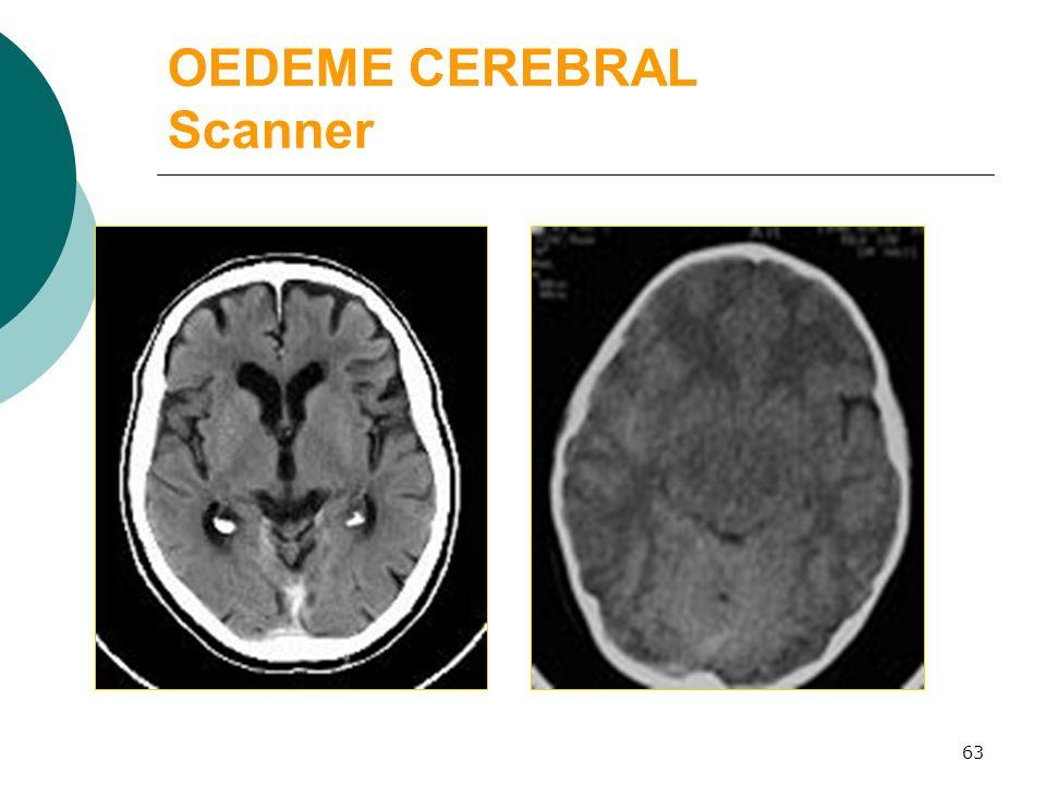 63 OEDEME CEREBRAL Scanner normal œdème cérébral
