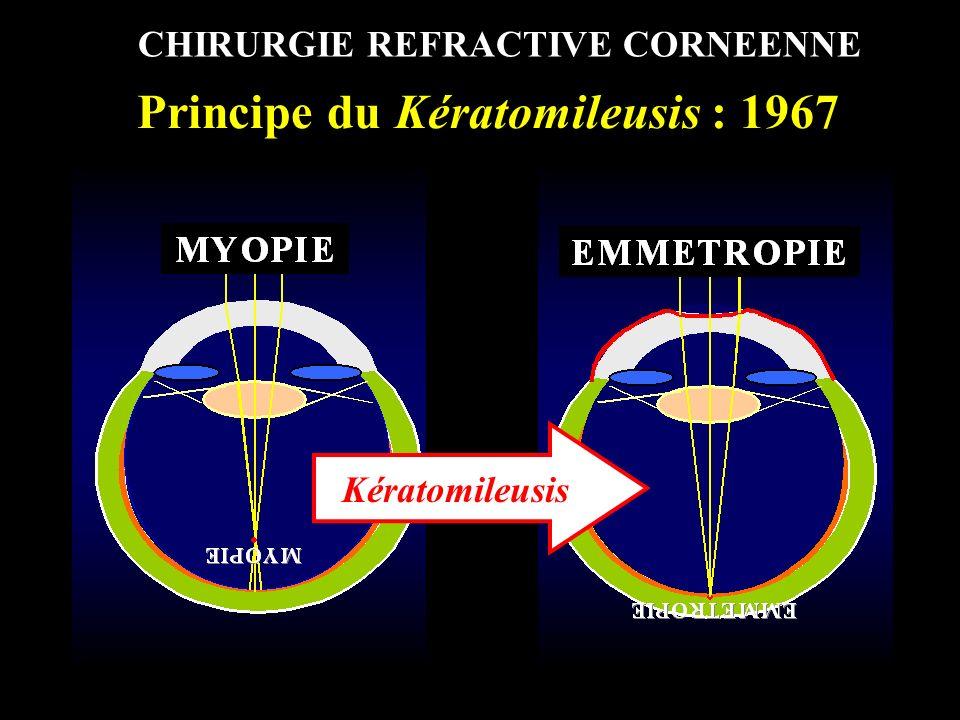 UV Principe du LASIK : 1992 Technique de référence Kératomileusis par Laser Excimer Découpe Lamellaire superficielle Capot de 150 µm Photo-ablation