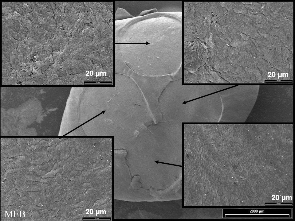 20 µm MEB