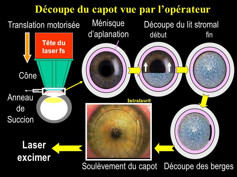 Tête du laser fs Ménisque daplanation Découpe du lit stromal début fin Découpe des bergesSoulèvement du capot Laser excimer Découpe du capot vue par l