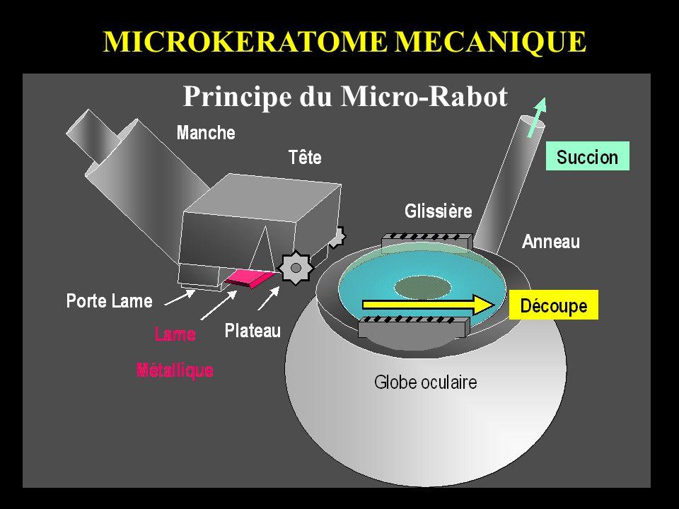 MICROKERATOME MECANIQUE Principe du Micro-Rabot