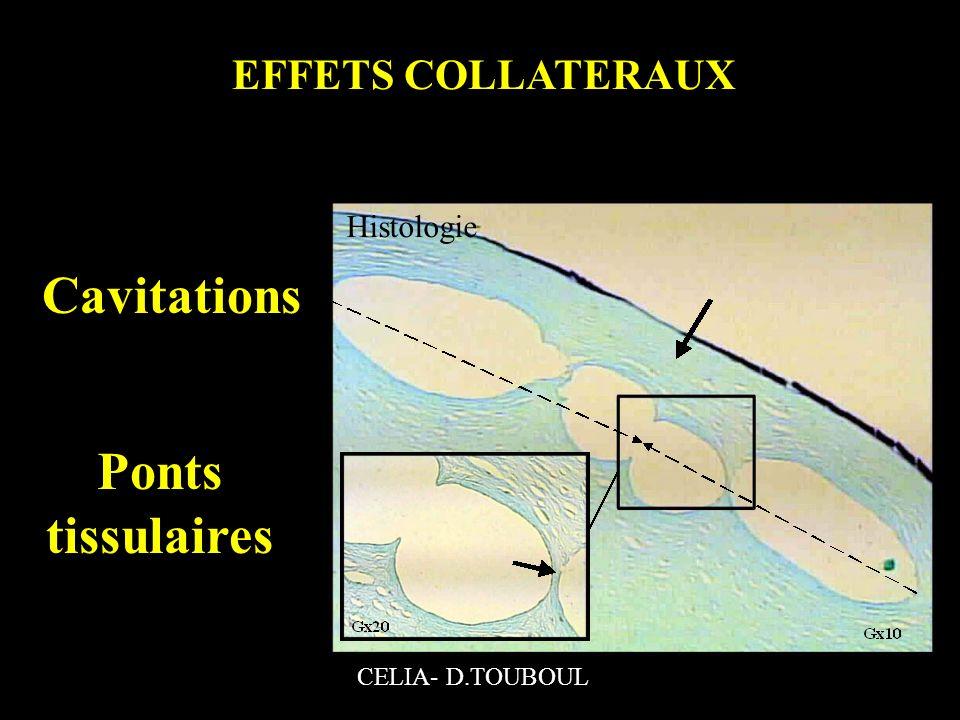EFFETS COLLATERAUX Ponts tissulaires Cavitations CELIA- D.TOUBOUL Histologie