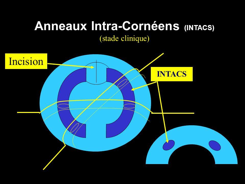 Anneaux Intra-Cornéens (INTACS) (stade clinique) INTACS Incision