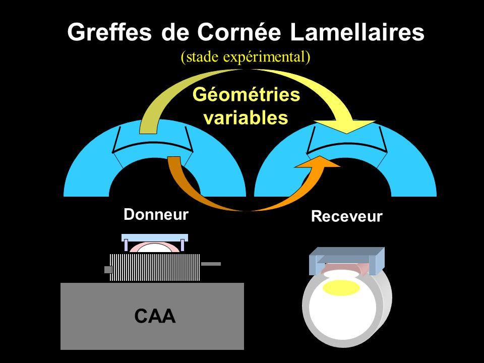 Greffes de Cornée Lamellaires (stade expérimental) Donneur Receveur Géométries variables CAA