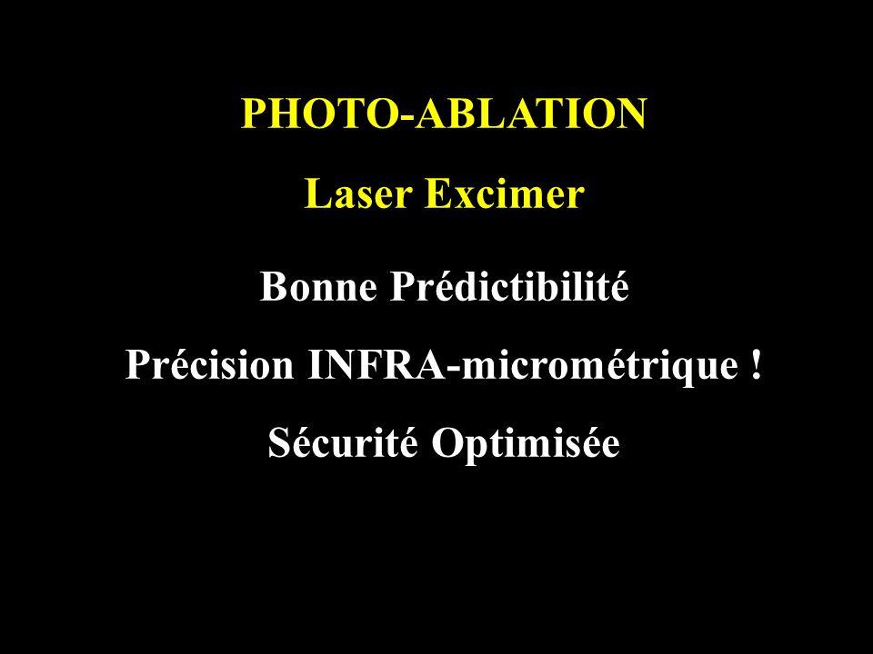 PHOTO-ABLATION Laser Excimer Bonne Prédictibilité Précision INFRA-micrométrique ! Sécurité Optimisée