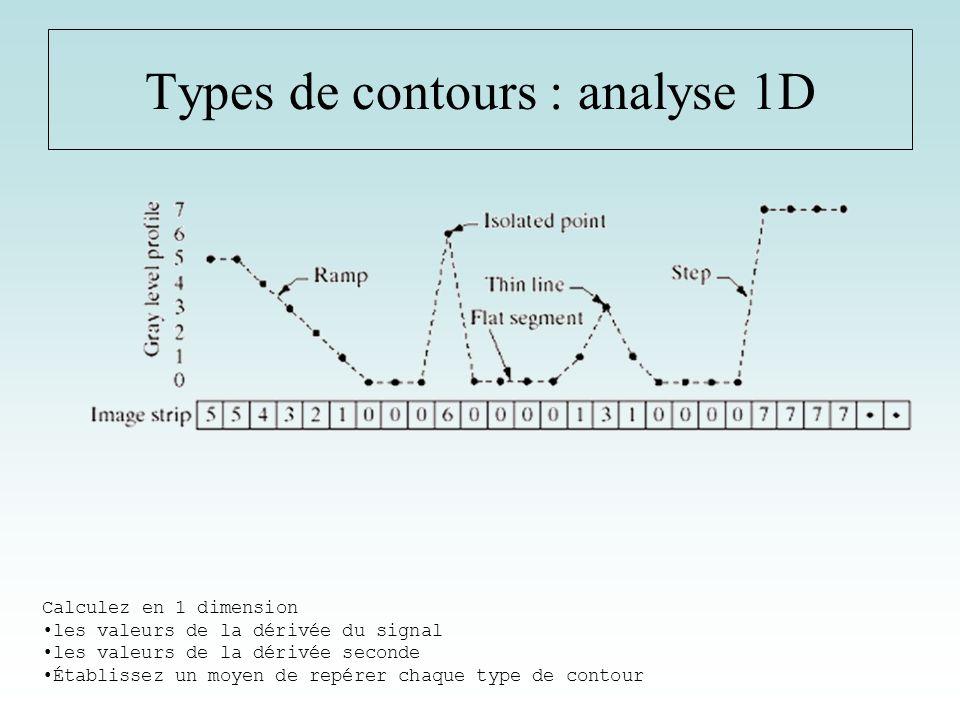 Types de contours : Exemples 2D IRM cérébral Rétinogramme