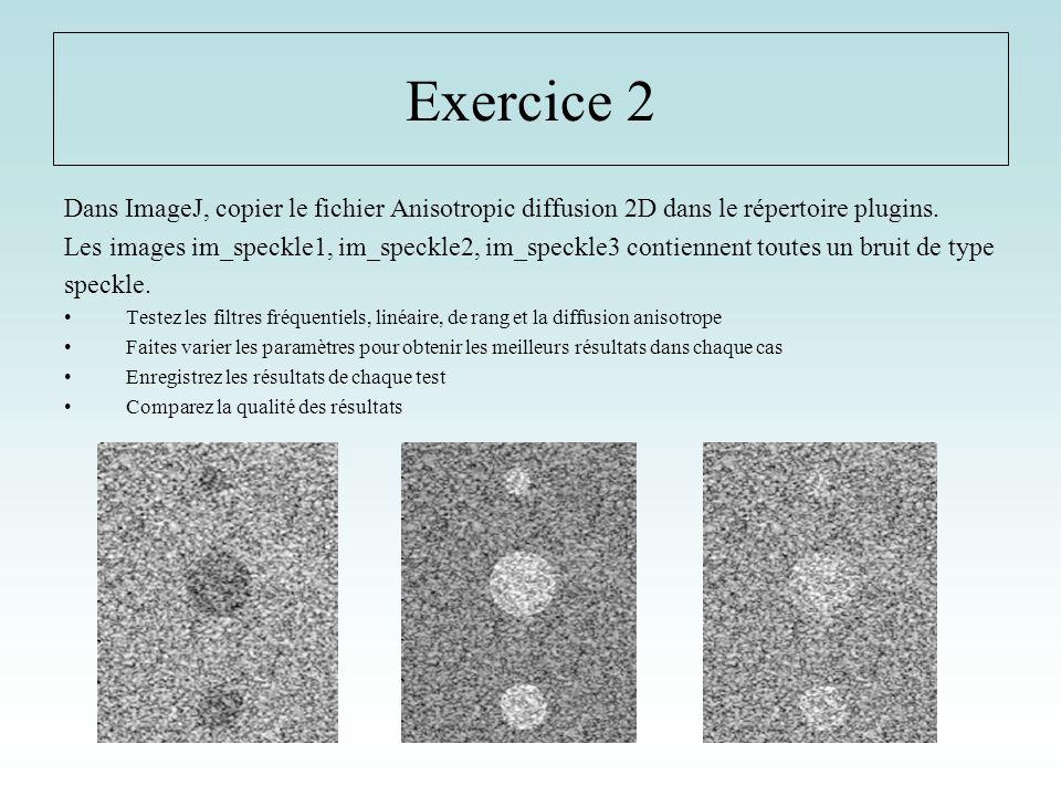 Exercice 2 Dans ImageJ, copier le fichier Anisotropic diffusion 2D dans le répertoire plugins. Les images im_speckle1, im_speckle2, im_speckle3 contie