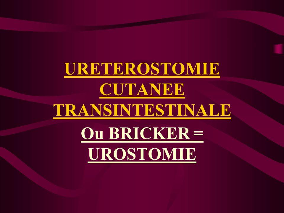 URETEROSTOMIE CUTANEE TRANSINTESTINALE Ou BRICKER = UROSTOMIE