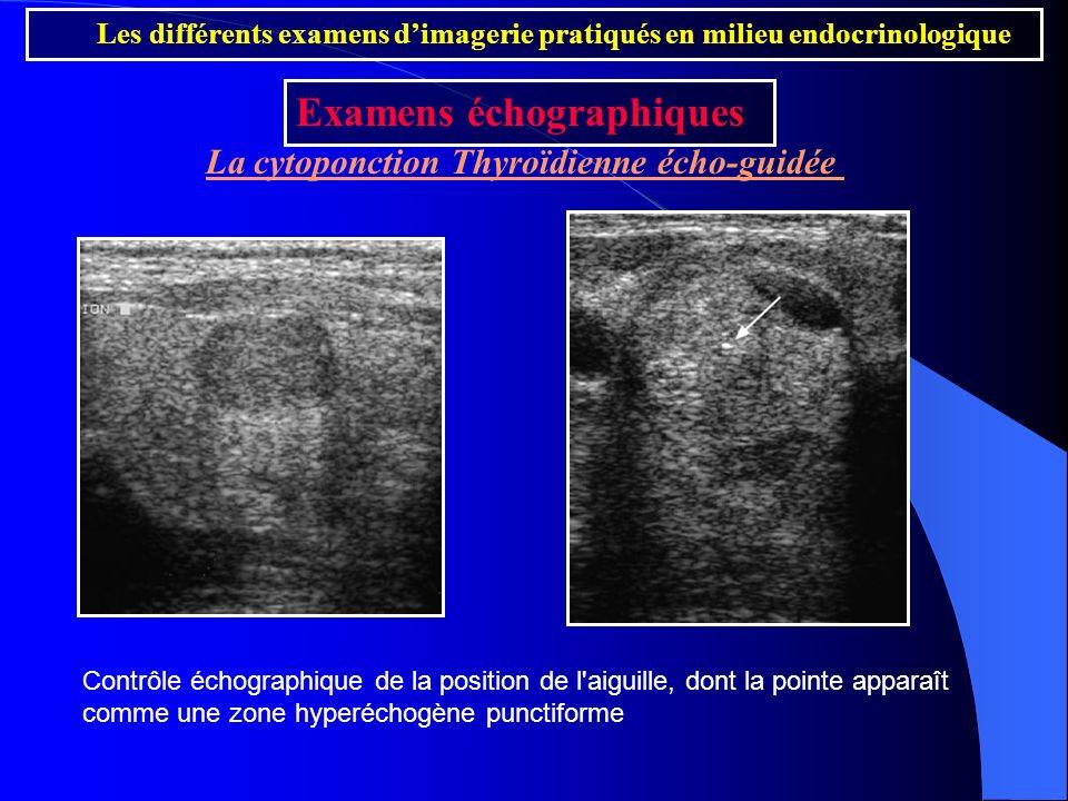La cytoponction Thyroïdienne écho-guidée Les différents examens dimagerie pratiqués en milieu endocrinologique Examens échographiques Contrôle échogra