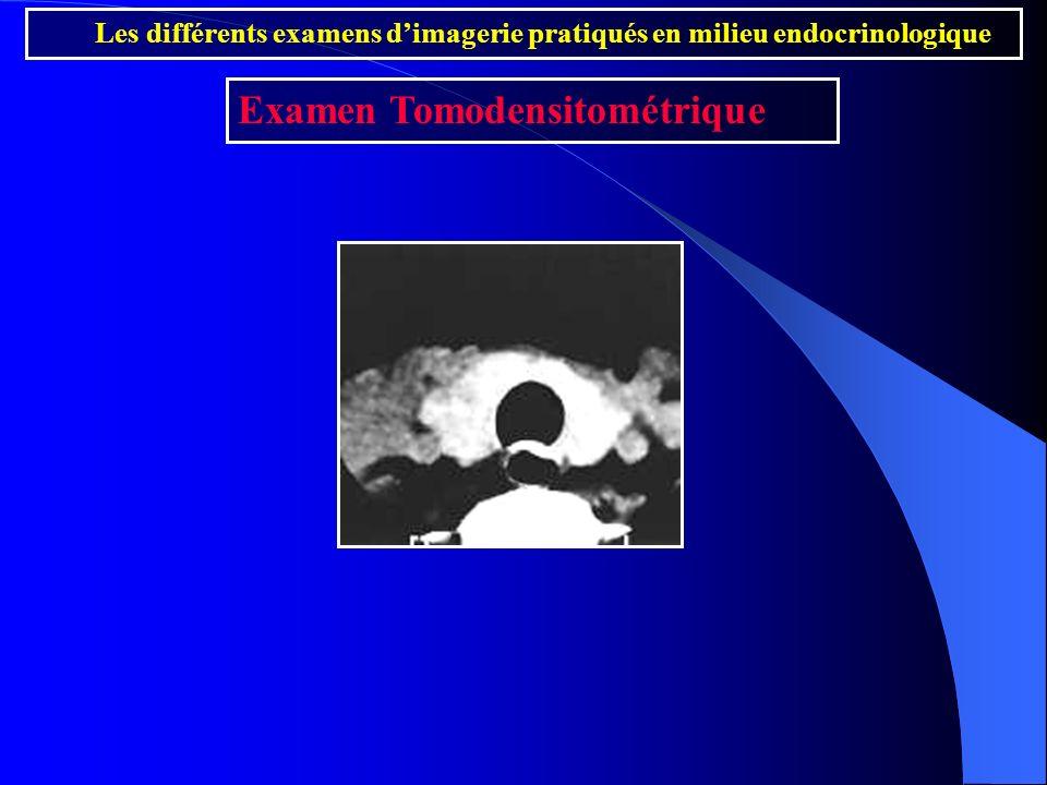 Les différents examens dimagerie pratiqués en milieu endocrinologique Examen Tomodensitométrique