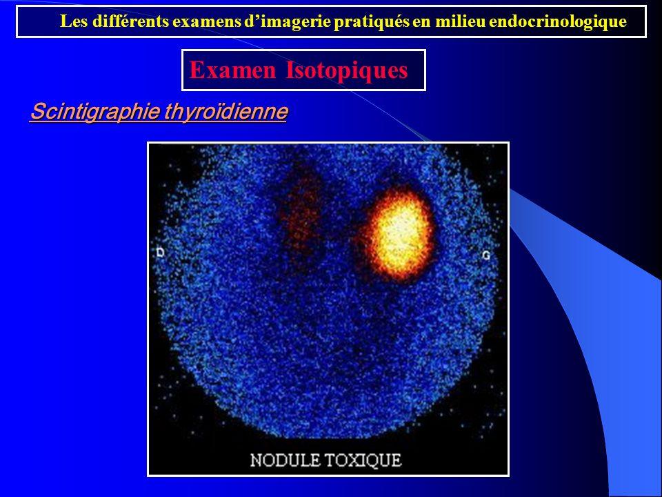 Scintigraphie thyroïdienne Les différents examens dimagerie pratiqués en milieu endocrinologique Examen Isotopiques