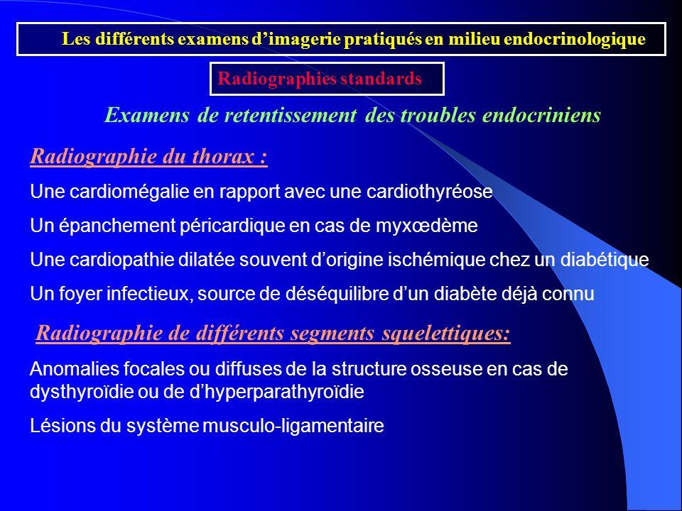 Examens de retentissement des troubles endocriniens Radiographie du thorax : Une cardiomégalie en rapport avec une cardiothyréose Un épanchement péric