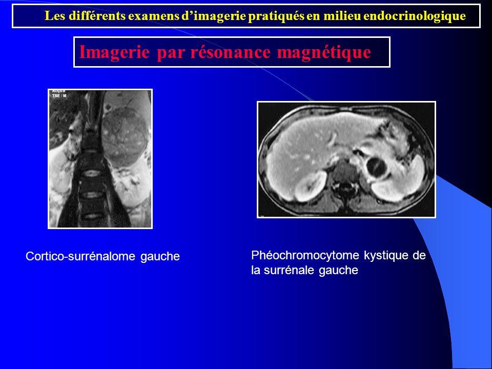 Les différents examens dimagerie pratiqués en milieu endocrinologique Imagerie par résonance magnétique Cortico-surrénalome gauche Phéochromocytome ky
