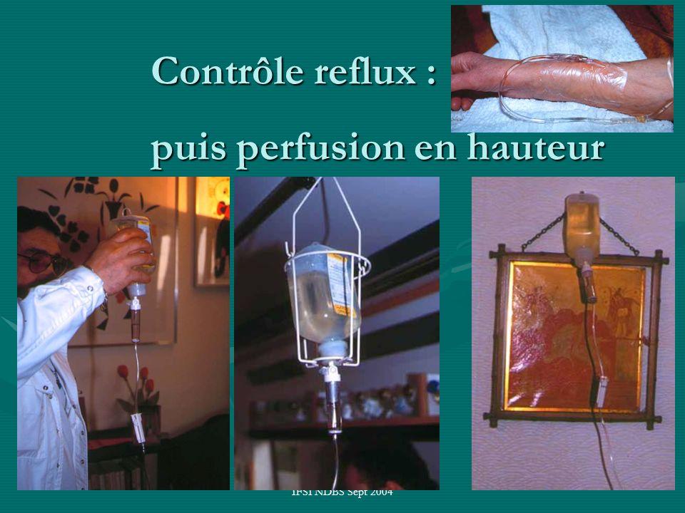 IFSI NDBS Sept 2004 Contrôle reflux : puis perfusion en hauteur