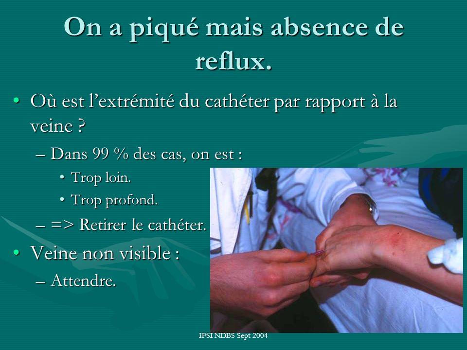 IFSI NDBS Sept 2004 On a piqué mais absence de reflux. Où est lextrémité du cathéter par rapport à la veine ?Où est lextrémité du cathéter par rapport