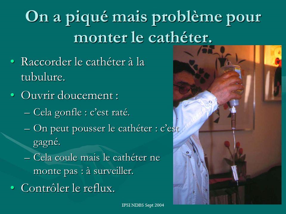 IFSI NDBS Sept 2004 On a piqué mais problème pour monter le cathéter. Raccorder le cathéter à la tubulure.Raccorder le cathéter à la tubulure. Ouvrir