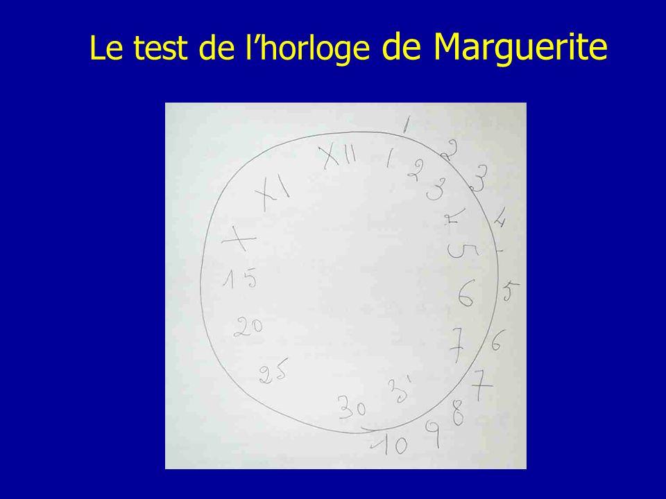 Le test de lhorloge de Marguerite