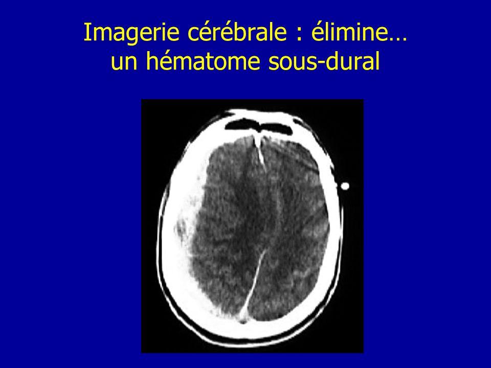 Imagerie cérébrale : élimine… un hématome sous-dural