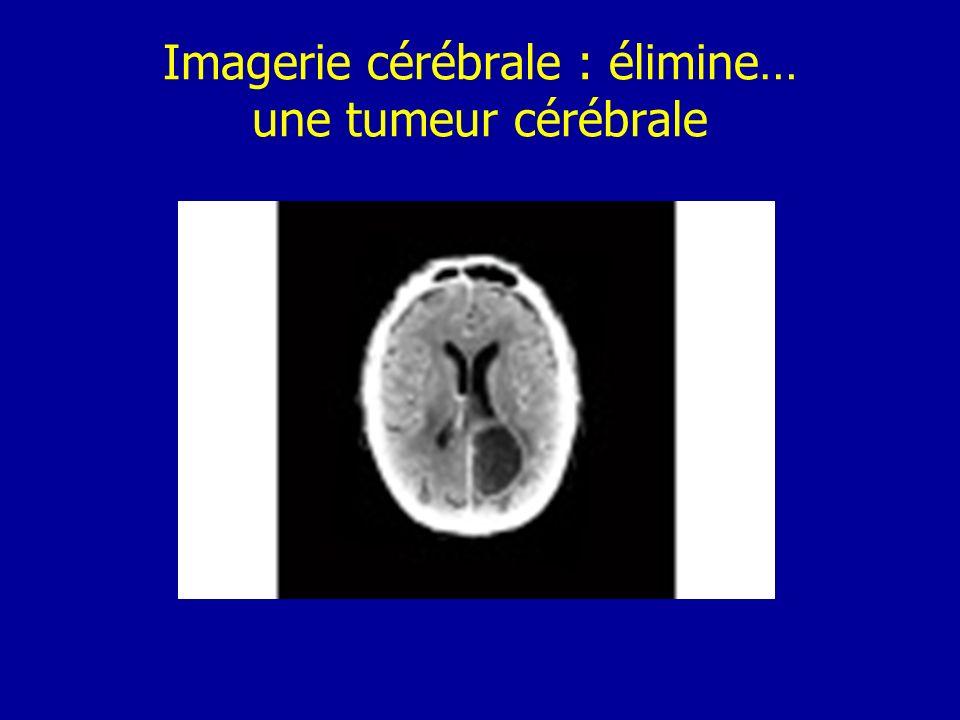Imagerie cérébrale : élimine… une tumeur cérébrale