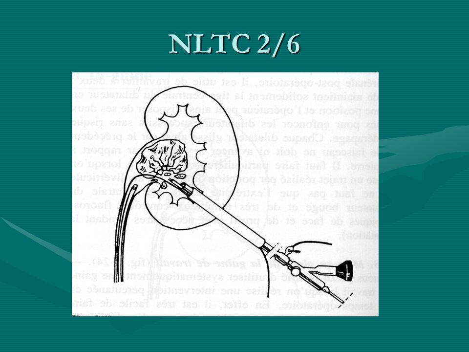 NLTC 2/6