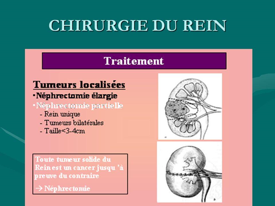 CHIRURGIE DU REIN