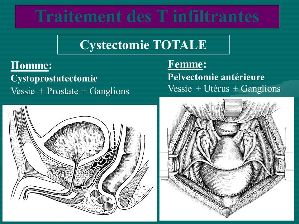 Traitement des T infiltrantes Cystectomie TOTALE Homme: Cystoprostatectomie Vessie + Prostate + Ganglions Femme: Pelvectomie antérieure Vessie + Utéru
