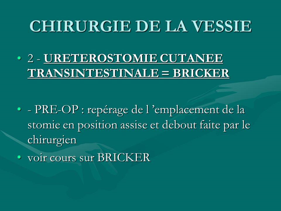 CHIRURGIE DE LA VESSIE 2 - URETEROSTOMIE CUTANEE TRANSINTESTINALE = BRICKER2 - URETEROSTOMIE CUTANEE TRANSINTESTINALE = BRICKER - PRE-OP : repérage de
