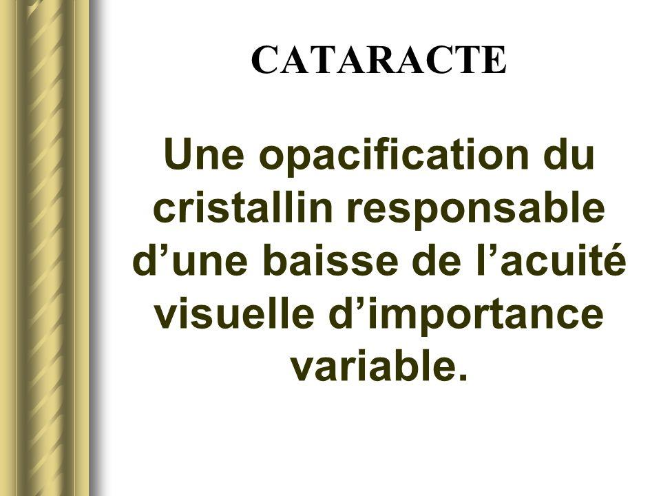 CATARACTE - EPIDEMIOLOGIE Liée au vieillissement, la cataracte est inéluctable.