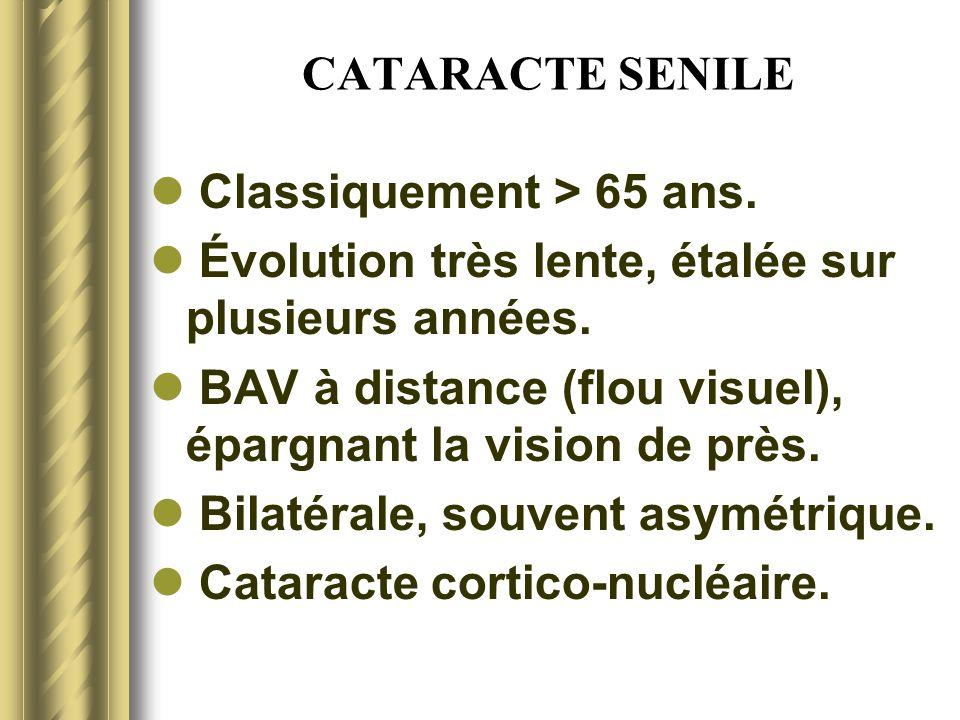CATARACTE SENILE