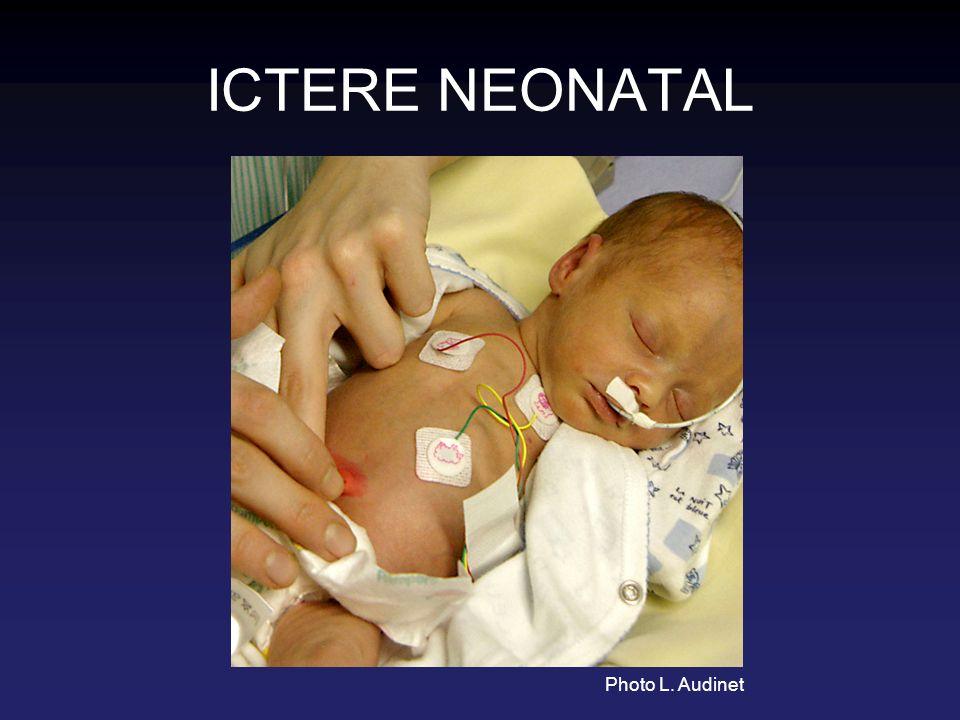 ETIOLOGIES A bilirubine libre : pathologiques Hypothyroïdie NN de mère diabétique Maladie de Gilbert… (infection urinaire)